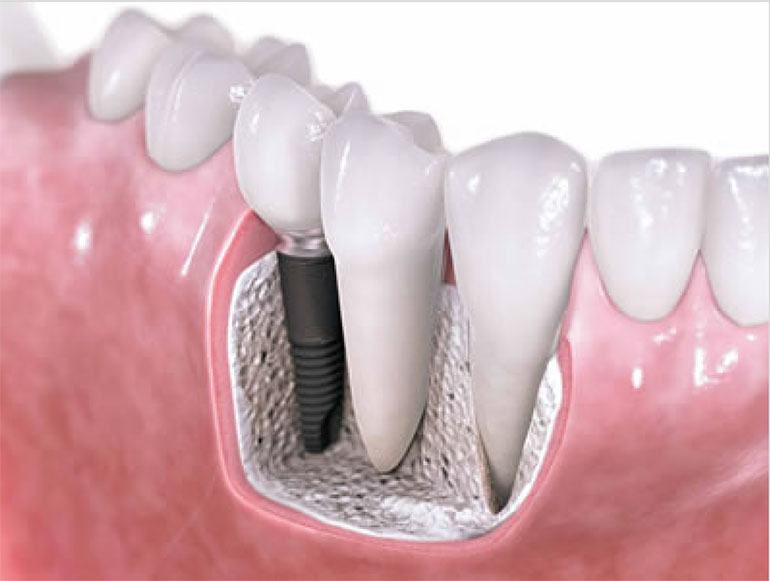 Dental-Implants-770x581