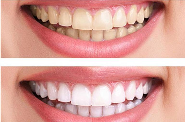 Teeth-Whitening-770x507